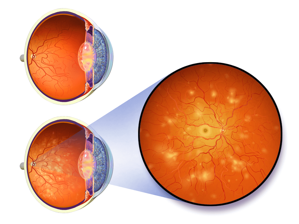 How Does Diabetes Cause Diabetic Retinopathy?